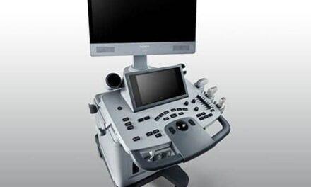 Acclarix LX8 Ultrasound System Leverages Technology Partnership