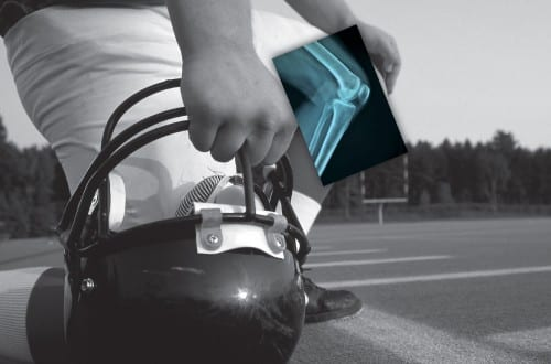 NFL Uses Carestream's DRX-1 X-Ray for New Player Drafts