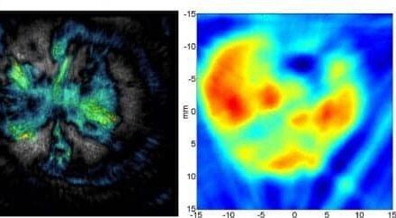 Hybrid Imaging Advances Optical, Ultrasonic Imaging