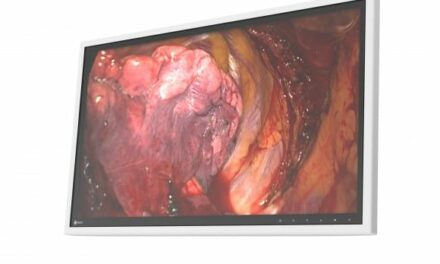 LCD Monitor Designed to Evolve with Advancing Medical Technology