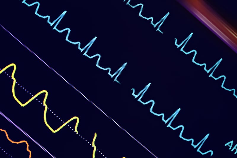 Turning the Corner on Clinical Alarms