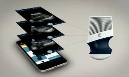 Clarius Introduces Handheld Ultrasound Scanner
