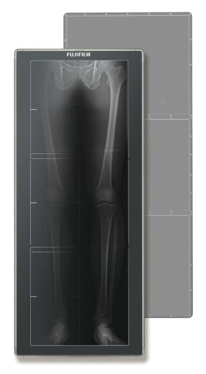 Fujifilm Unveils New DR Technology to Orthopedists