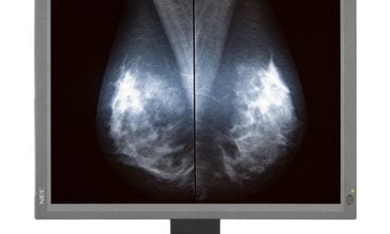 Breast Imaging Monitor Obtains FDA Clearance