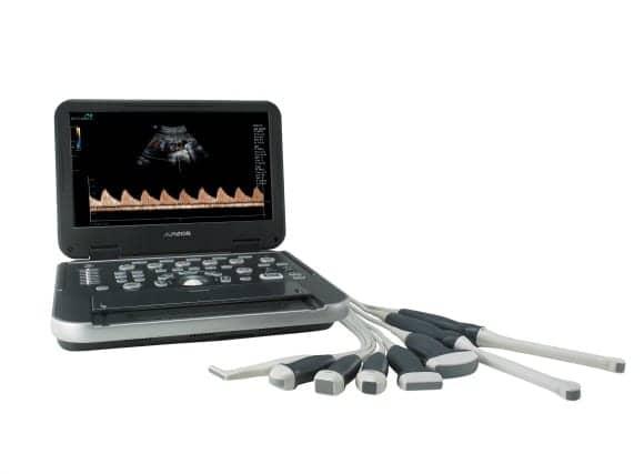 FDA Clears Alpinion Portable Ultrasound System