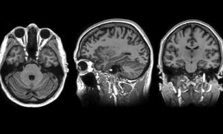 Mayo Clinic, GE Introduce Compact 3T MRI