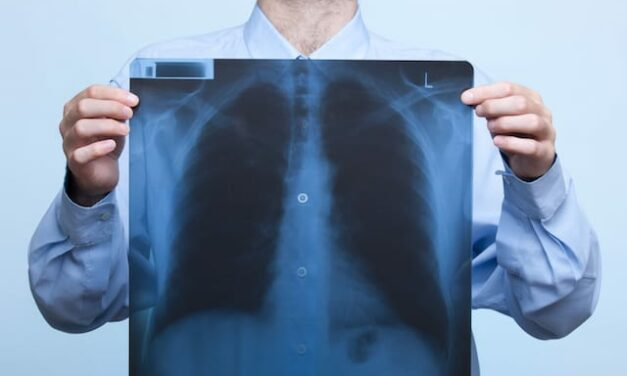 Mobile Units to Drive Growth of X-Ray Equipment Market