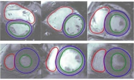 FDA Clears Arterys' Cloud-Based Cardiac MRI Software