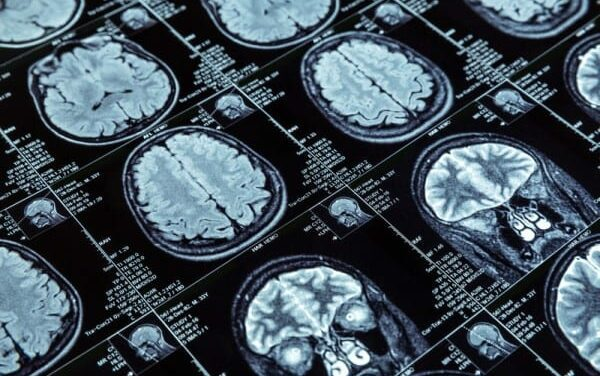 Study Uses MRI to Examine Brain Changes During Extended Space Missions