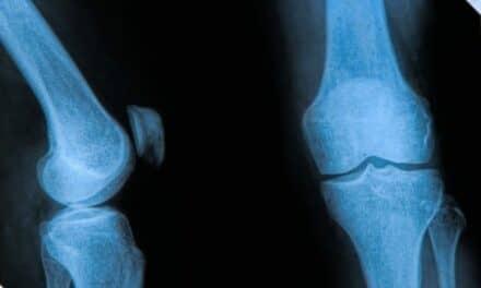 Report: Refurbished Orthopedic Medical Imaging Market Hotter Than Ever