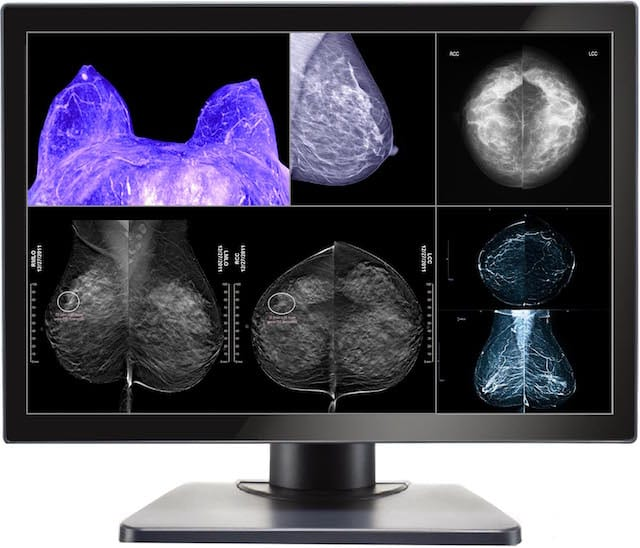 Double Black Imaging Debuts Multimodality Display