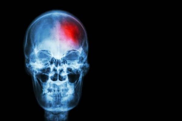 Innovations in Medical Imaging