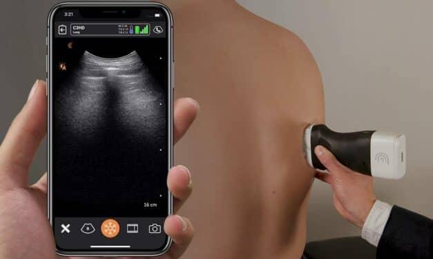 AI-based Portable Ultrasound Market Soars