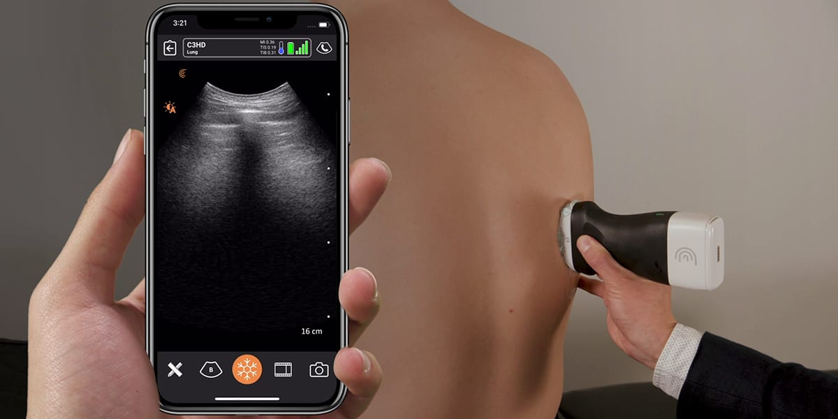 AI-based Portable Ultrasound Market Soars