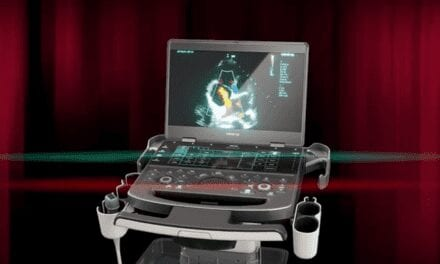Mindray Launches Point of Care Ultrasound System