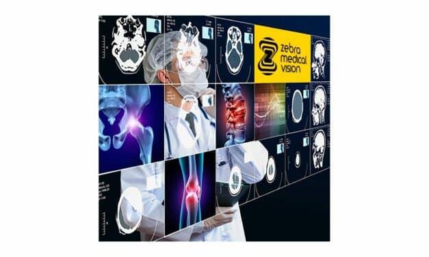 Zebra Medical Vision Gets FDA Clearance for AI 3D Bone Modeling Solution