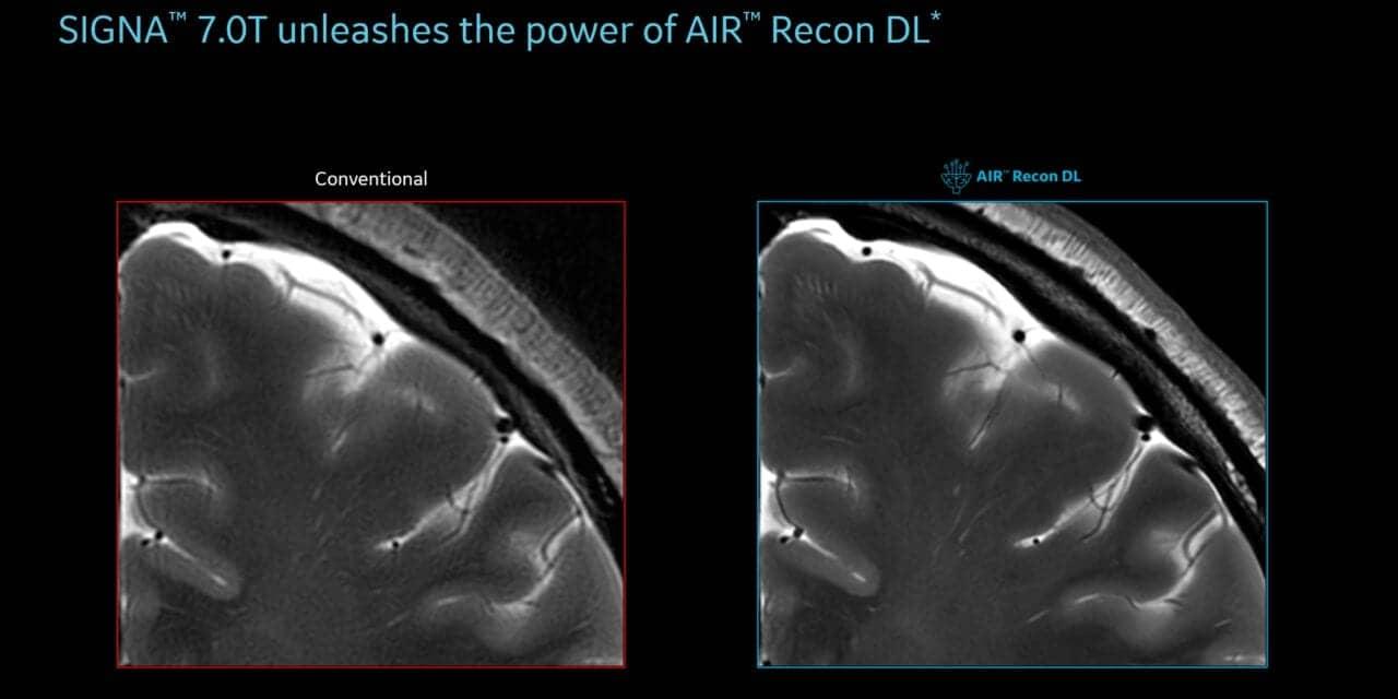 FDA Clears GE Healthcare AI MRI Technology