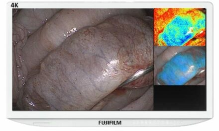 FDA Clears Fujifilm's Endosurgical Image Enhancement Technology for Eluxeo Surgical System