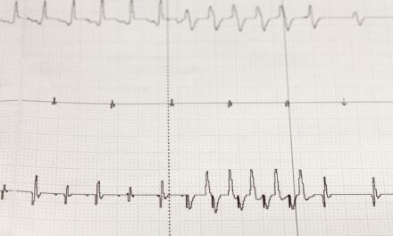 Qardio Launches Remote Patient Monitoring System That Includes Cardiac Monitoring Service