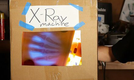 Engineer Builds His Own X-Ray After Hospital Charges Him $69K